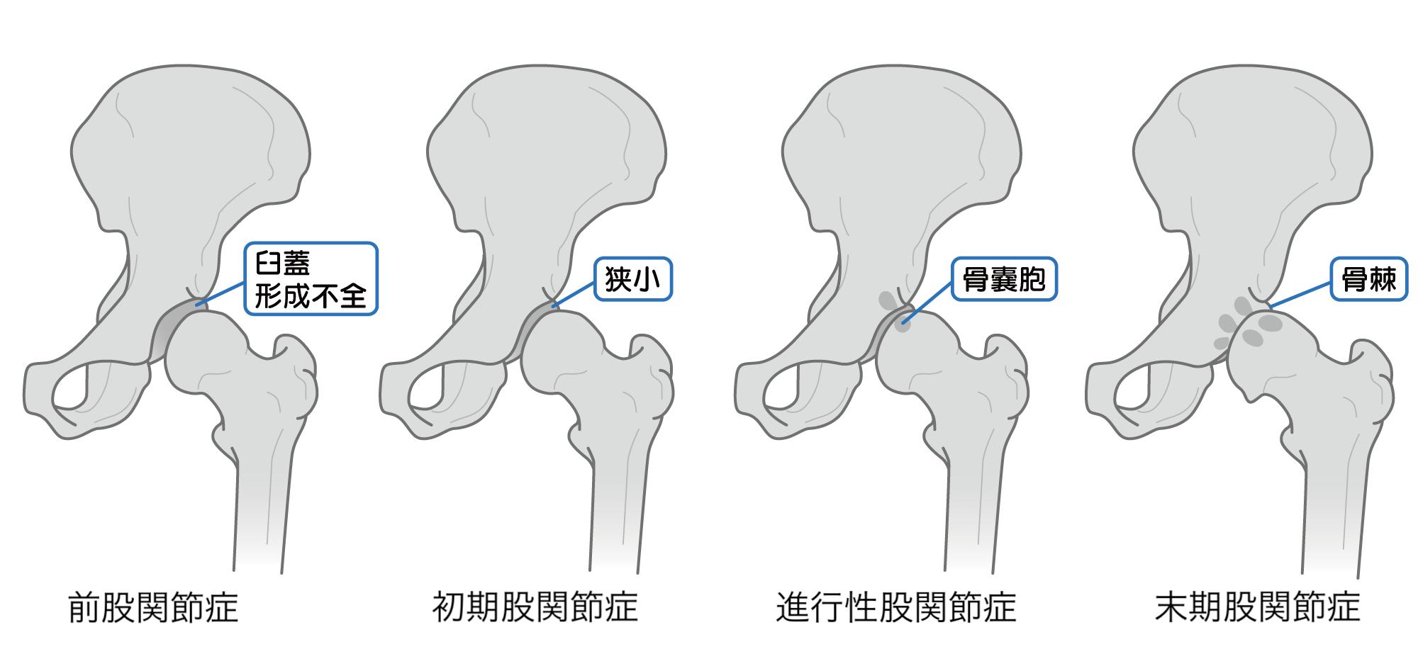 変形性股関節症による歩行症状と原因、治療方法について紹介 | AYUMI EYE
